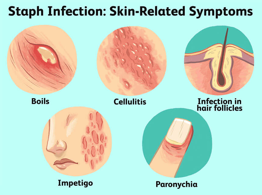 Syptoms of Staph Infection