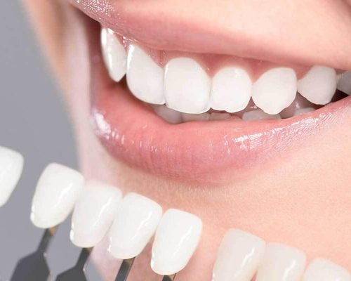 Teeth Whitening Home Recipe | Best Ways to Make Your Teeth Shine