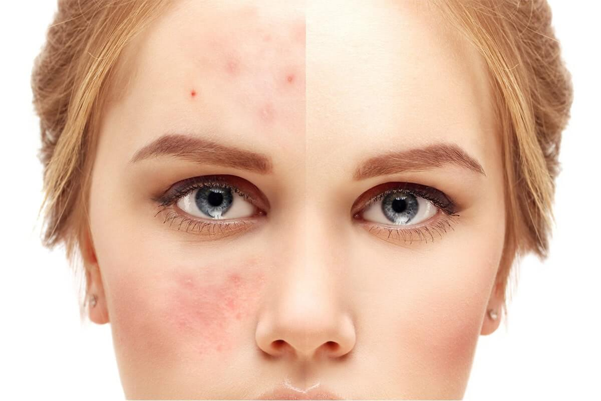 Acne Removal Home Remedies