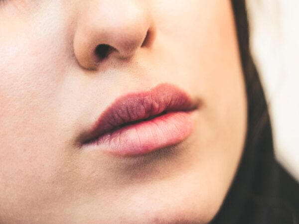Best Home Remedies for Sunburned Lips   How To Prevent & Treat