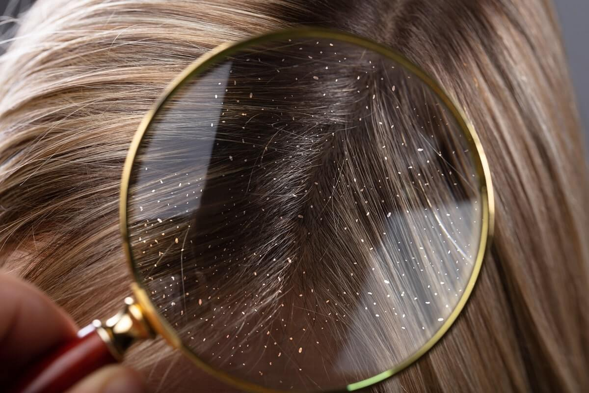 How to Get Rid of Dandruff Flakes | Experts Complete Guide