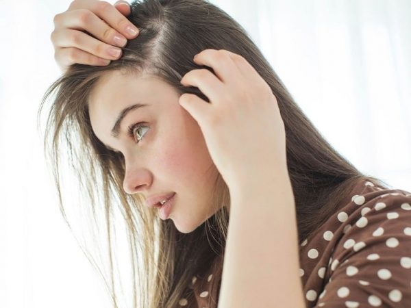 How to Remove Lice from Hair   Treatment and Remedies