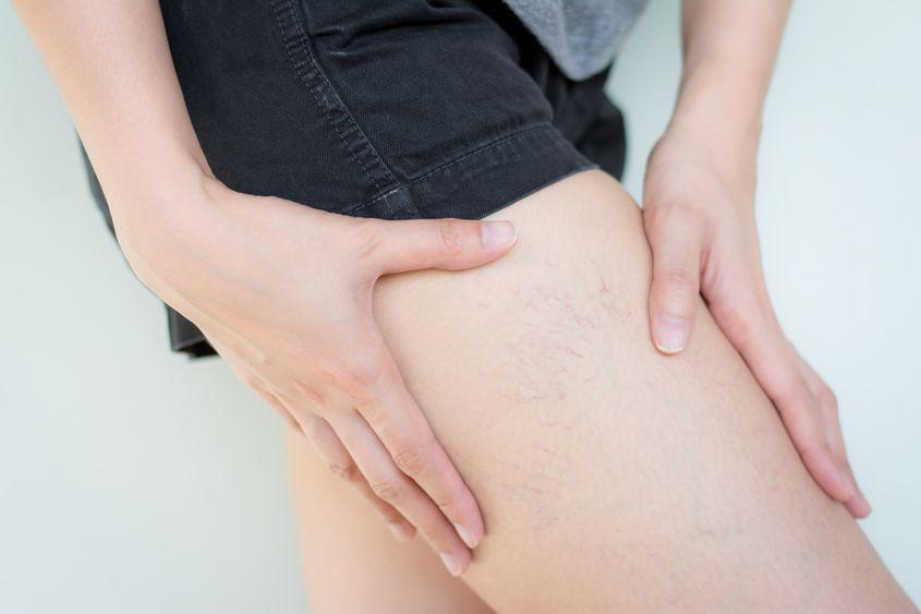 Best Leg Makeup To Cover Spider Veins | Ultimate Guide (2021)