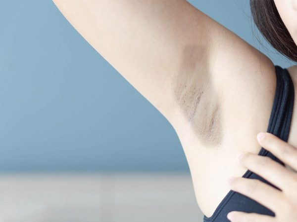 How to Get Rid of Dark Underarms Fast? | Easy Home Remedies