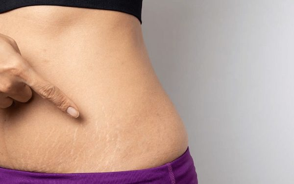 Lemon Juice for Stretch Marks | Best Ways to Get Rid of Striae